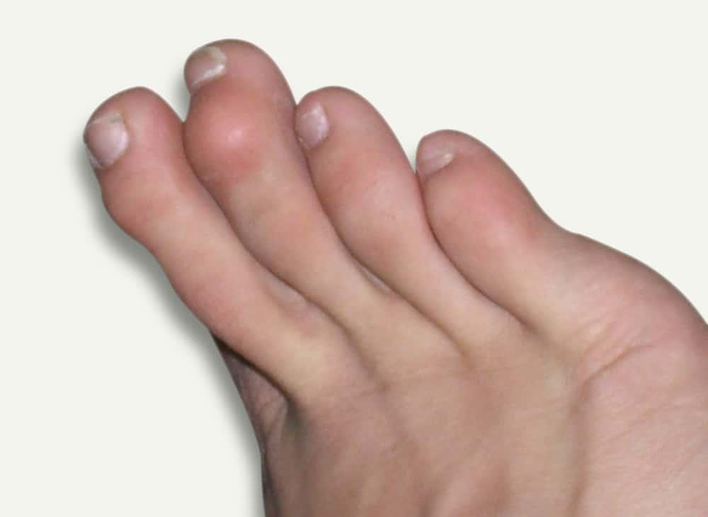 hammer toes symptoms - 1000×730